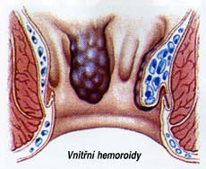 hemeroidy 2