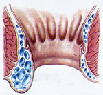 hemeroidy-avicenna